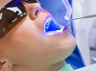 Advanced Dentistry Photo at Pacific Heights